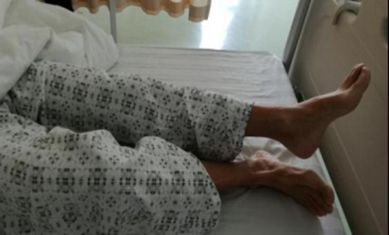 术后3天患者双下肢肌力恢复良好